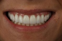 Have you ever wondered what porcelain veneers look like? Read our latest blog to find out all kinds of information about pretty porcelain veneers!