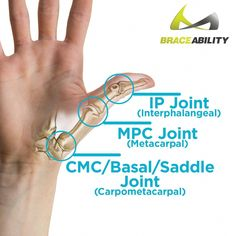 labeled thumb joint anatomy affected in thumb pain # thumb joint pain Hard Thumb Arthritis Treatment Splint & CMC Basal Joint Immobilizer Yoga For Arthritis, Juvenile Arthritis, Arthritis Exercises, Natural Remedies For Arthritis, Rheumatoid Arthritis Treatment, Knee Arthritis, Types Of Arthritis, Arthritis Relief, Arthritis