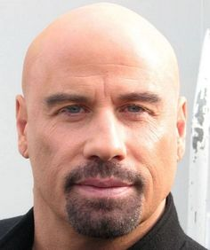 Hairstyles for Balding Men: How to Deal with Baldness: Hairstyle For Balding Men Hipsterwall ~ hipsterwall.com Hairstyles Inspiration