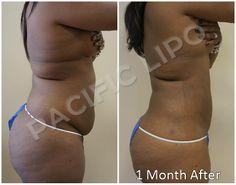 60 Liposuction Results Images Liposuction Lipo Pa C
