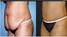 Conoce como puedes hacer desaparecer por completo la grasa abdominal en tan solo días sin necesidad de pasar hambre o tener que exagerar con el ejercicio