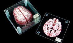 Des dessous de verre cérébraux