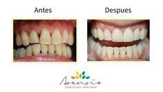 La Doctora Asensio y el Doctor Lanuza son especialistas en diseñar sonrisas espectaculares con las carillas LUMINEERS, el tratamiento que todas las estrellas de Hollywood han elegido para deslumbrar. Aquí os mostramos los resultados que hemos conseguido en Clínica Dental Asensio
