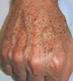 What causes old age spots? Old age spots on fac Health And Beauty Tips, Health Tips, Health And Wellness, Age Spots Pictures, Beauty Care, Beauty Skin, Beauty Secrets, Beauty Hacks, Bleaching Cream