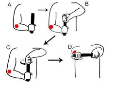 4 exercises for tennis elbow pain that you should not skip - Be My Healer Muscle Fatigue, Muscle Spasms, Muscle Pain, Tennis Elbow Symptoms, Tennis Elbow Exercises, Therapy Putty, Hand Therapy, Exercise Images, Do Exercise