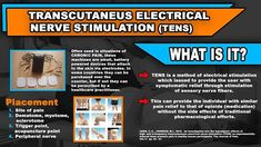 TENS is a method of electrical stimulation  which issued to provide the user with symptomatic relief through stimulation of sensory nerve fibers. This can provide the individual with similar pain relief to that of opioids (medication) without the side effects of traditional pharmacological efforts. Often used in situations of CHRONIC PAIN, these machines are small, battery powered devices that attach to the skin via electrodes. Placement of electrodes often are at the site of pain, on the…