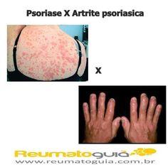 Psoríase É uma doença de pele que afeta 1 -2% da população. É uma alteração cutânea inflamatória crônica caracterizada pela presença de pápulas (elevação sólida e limitada na pele) e placas arredondadas de cor vermelha cobertas por escamas prateadas.