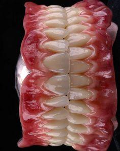 #dentistryw Photography by  @gutoocz  Meu trabalho com as fotos do meu amigo Renato Ferreira ai fica facil kkkk . . #teeth#tooth#toothless#extraction#cirugiabucal#oralsurgery#dental#dentist#dentistry#dentistrymyworld#dentalhygiene#dentalassistant#dentalschool#dentalstudent#dentalhygiene#implant#implants#odonto#odontogram#odontologo#odontolove#odontología#odontologia#odontogram#odontoporamor#estomatología#prosthesis#prosthodontics#restorative#drawing#smile
