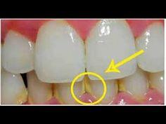Mengeejutkan,, Hanya Dalam 5 Menit !! Hilangkan Plak Gigi Dengan Bahan Ini - YouTube
