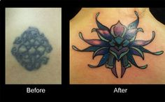 Before and After Tattoos | Cover Up Tattoo Cute Neck Flower Tattoo #flowertattoo #necktattoo #neckflowertattoo #coveruptattoo #tattoosforgirls