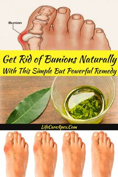 Health Beauty Remedies Get Rid of Bunions Naturally With This Simple But Powerful Remedy Health Tips For Women, Health Advice, Health And Beauty, Health Care, Health Diet, Bone Health, Health Facts, Beauty Skin, Bunion Remedies