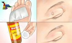 How to Remove Moles, Warts, Blackheads, Skin Tags, and Age Spots Completely Naturally! Age Spot Remedies, Skin Tags Home Remedies, Natural Remedies, Acne Remedies, Mole Removal, Skin Tag Removal, Molluscum Pendulum, Skin Tag On Eyelid, Get Rid Of Blackheads