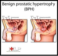 Benign Prostatic Hyperplasia, Men Over 50, Nursing Tips, Reproductive System, National Institutes Of Health, Nclex, Health Education, Our Body, Disorders