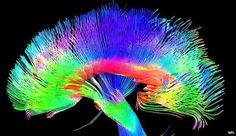 Science Reveals Artists Really Do Have Different Brains | The Creators Project
