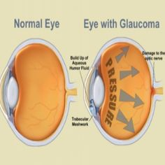 Natural Cure For Glaucoma - How To Cure Glaucoma Naturally | Search Herbal Remedy