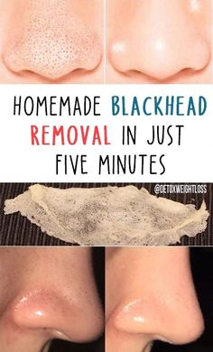 5 Straight forward Dwelling Remedies To acquire Rid Of Skin Warts Warts On Hands, Warts On Face, Get Rid Of Blackheads, Get Rid Of Warts, Remove Warts, Skin Bumps, Skin Moles, Skin Growths, Skin Tag Removal