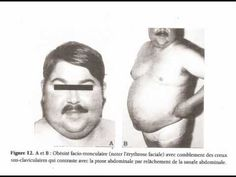 SURRENALES ANATOMIE PHYSIOLOGIE - YouTube hypercotisolisme syndrome de cushing