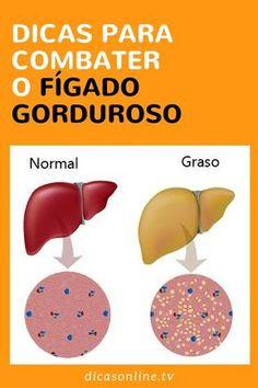 Gordura no fígado tratamento