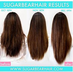 The Ultimate Sugar Bear Hair Review – All You Need to Know About The Popular Hair Vitamins