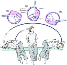 Benign paroxysmal positional vertigo (BPPV): โรคหินปูนในหูชั้นในหลุด