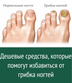 Nail Fungus, Helpful Hints, Health, Tips, Knitting, Useful Tips, Health Care, Tricot, Breien