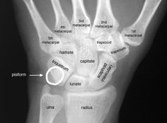 Do you have wrist pain in yoga? There is a lot of advice out there, but sometimes the wrist pain in yoga comes from unusual places in the practice. Geriatric Occupational Therapy, Radiology Student, Wrist Pain, Ju Jitsu, Medical Anatomy, Human Anatomy And Physiology, Sports Medicine, Medical Information, Massage Therapy