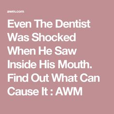 Even The Dentist Was Shocked When He Saw Inside His Mouth. Find Out What Can Cause It : AWM