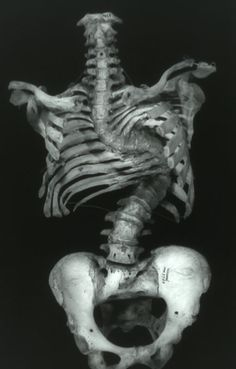 scoliosis.  Yep that would be my condition...just not that bad..
