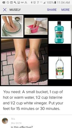 Here is the recipe: 1 cup of Listerine (or some antiseptic mouthwash . jola lat jworyna Schönheit Here is the recipe: 1 cup Listerine (or any antiseptic mouthwash), 1 cup apple cider vinegar or white vinegar 2 cups warm water ~~ soak the soluti Beauty Secrets, Beauty Hacks, Listerine Feet, Listerine Mouthwash, Dry Skin On Feet, Smooth Feet, Feet Care, Cleaning, Health And Wellness