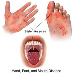 Hand, foot, and mouth disease (HFMD) is an infection caused by germs called enteroviruses. HFMD is often a mild infection but in rare cases can lead to a more serious illness. HFMD is easily spread when in close contact with an infected person. The illness is called HFMD because it usually causes a rash on the hands, feet, and inside the mouth. The skin rash usually does not itch but painful blisters may form. Symptoms: general malaise, sore throat, and fever.