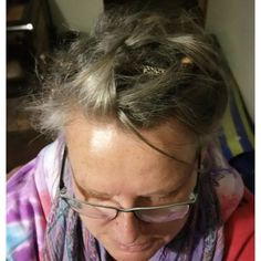 Having short dreads and some retained fringe my client wanted a more subtle look. Pulling in the short dreads and pinning them in a slightly disheveled manner created what I call the dreadlock nest. Dreadlocks Pictures, Partial Dreads, Female Dreads, Short Dreads, Dreadlock Extensions, Dreadlock Hairstyles, Hair Type, Nest, Your Hair