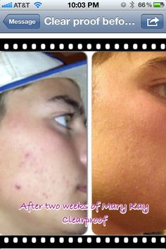 Mary kay Clear proof does work wonders get it at   www.marykay.com/mgonzalez6865