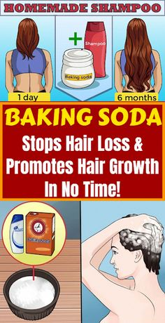 Soda Stops Hair Loss & Promotes Hair Growth In No Time! Baking Soda Stops Hair Loss & Promotes Hair Growth In No Time! New Arrival Andrea Hair Growth Products Ginger Oil Hair Growth Faster Grow Hair Ginger Shampoo Stop Hair Loss Treatment Baking Soda Dry Shampoo, Baking Soda For Skin, Baking Soda For Dandruff, Baking Soda And Honey, Baking Soda Baking Powder, Baking Soda Water, Baking Soda Uses, Honey Shampoo, Shampoo Bar