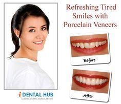 Refreshing Tired Smiles with Porcelain Veneers Veneers Teeth, Dental Veneers, Pompton Lakes, Franklin Lakes, Porcelain Veneers, Dental Art, Dentistry, Tired, Health Fitness