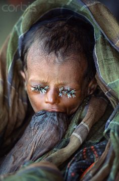 Famine in Somalia~ Believe it or not, this child is breastfeeding (yes that is a breast) while the flies are trying to eat the moisture from his eyes.....