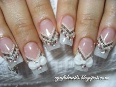 White glitter French tip, lace, rhinestones and bows