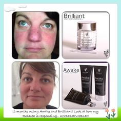 Perfect combination for eczema, psoriasis, and other skin conditions! Brilliant - $39 Awake - $39 AMAZING results!