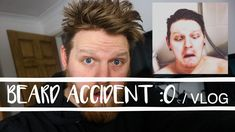 I HAD AN ACCIDENT WITH MY BEARD | VLOG David, Videos, Youtube, Movie Posters, Movies, Films, Film, Movie, Movie Quotes