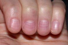 Nail problems can be create Causes Fingernail. Its also your toenail and fingern… Nail problems can be create Causes Fingernail. Its also your toenail and fingern… Fingernail Ridges, Fingernail Health, Nail Health Signs, Turmeric For Skin, Mens Nails, Nail Problems, Health Problems, Nail Care Tips, Pretty Nail Art