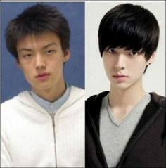 Skin Care Advice That Will Help At Any Age Community Post: 31 Crazy Before And After Photos Of Korean Plastic Surgery HE's gorgeous before.why have a surgery? Well I won't deny the fact that he's HOT now! Plastic Surgery Pictures, Types Of Plastic Surgery, Celebrity Plastic Surgery, South Korean Plastic Surgery, Korean Surgery, Korean Picture, Korean Photo, Beauty Hacks Skincare, Korean Skincare Routine