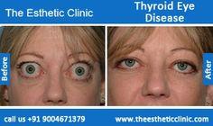 Thyroid Eye Disease Surgery, Graves Disease Treatment Before After Photos in Mumbai, India.
