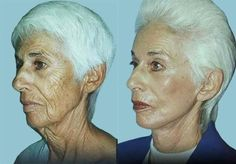 Facial Aerobics Aerobics For Erasing Wrinkles On The Face And Neck