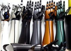 This Exiii Hackberry 3D-printed hand costs $200 and could mean the ...