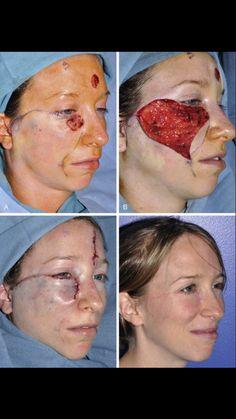 Facial reconstruction  St.post melanoma excision