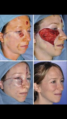 Facial reconstruction  St.post melanoma excision