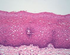 Inside your esophagus: The damage caused by GERD