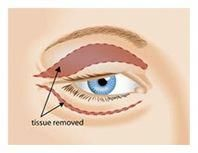 The surgeon will close the upper eyelid incision with tiny sutures and  usually n... - Plastic Surgery | Ojos
