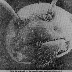 The face of an ant as seen through an electron microscope
