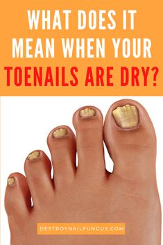 Do you suffer from dry, brittle, and even thick toenails? It's not uncommon for nails to split or break. However, you also shouldn't ignore it because it can be due to an underlying health condition. Find out what causes dry nails and what you can do to keep them healthy and strong. #nailhealth #nailcare #drytoenails #toenailproblems #drytoenailsremedy