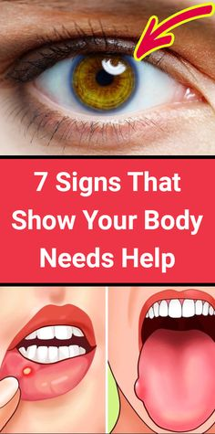 7 warning signs your body needs help - Health Care fitnessplan Health And Fitness Articles, Health Advice, Health Fitness, Fitness Tips, Wellness Fitness, Fitness Goals, Fitness Quotes, Workout Fitness, Wellness Tips